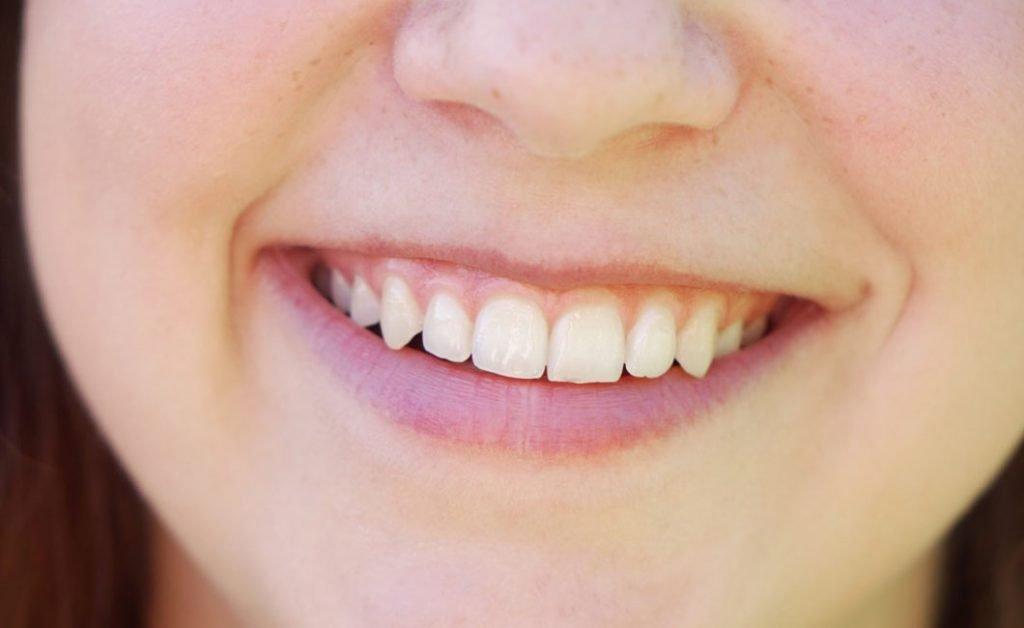 Zahnbetterkrankungen
