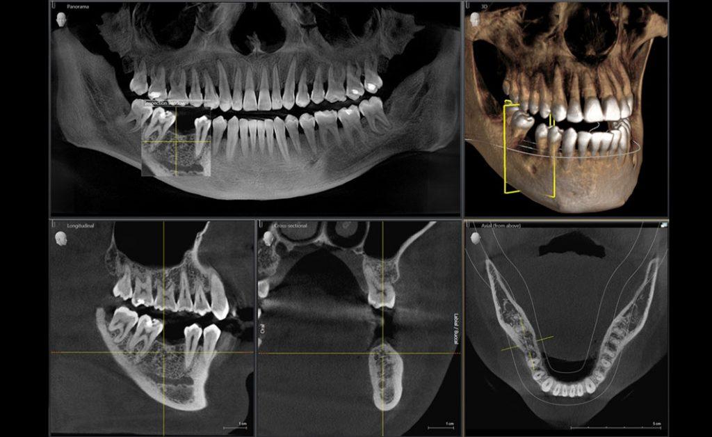 Digitales Röntgen Ortohphos SL 3D