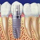 Implantat 6