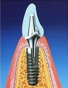 Implantat5